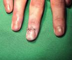 Bývá glomus tumor diagnostikován časně?