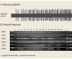Receptorové mechanizmy aktivácie pažerákových nervov kyselinou