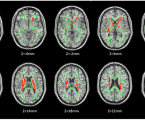 Brain white matter integrity in heroin addicts during methadone maintenance treatment is related to relapse propensity