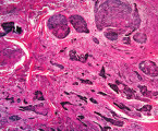Bazocelulárny karcinóm kože so zmiešaným histomorfologickým obrazom: porovnávacia štúdia