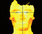 Detection of facial areas in ThERMAL IMAGES