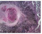Diferenciální diagnostika  granulomatózních procesů vplicích