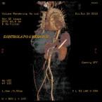 Disekce aorty typu B s těžkou viscerální a končetinovou ischemií řešená kompletní endovaskulární revaskularizací – kazuistika