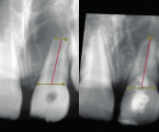 Assessment of Therapy of Necrotic Immature Permanent Teeth with Calcium Hydroxide Apexification and Maturogenesis <br>(Original Article – Clinical Retrospective Cohort Study)
