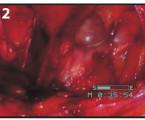 Supravezikální kýla jako raritní příčina kýl v tříselné krajině a její léčba laparoskopicky TAPP přístupem