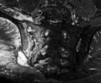 Využitie MRI vyšetrenia pri diagnostike axiálnej spondylartritídy