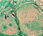 Steh proti fibrinovému lepidlu při mikroneurální anastomóze femorálního nervu u modelu potkana Sprague Dewly. Komparativní experimentální hodnocení klinických, histologických a statistických charakteristik
