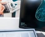 Neutropenie má minimální vliv na klinický přínos léčby palbociklibem