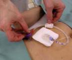Perkutánní endoskopická gastrostomie: analýza praxe v endoskopickém centru terciární lékařské péče