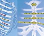 Historie stabilizace hrudního koše
