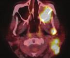 Extraneurálna diseminácia cerebelárneho meduloblastómu vizualizovaná pomocou PET/CT s <sup>18</sup>F-FDG, kazuistika zriedkavého prípadu