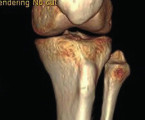 Proximal tibiofibular joint dislocation - Case report