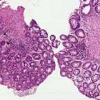 Cévní ektázie žaludečního antra asyndrom solitárního rektálního vředu – dvě vzácné diagnózy jako příčina anémie utéhož pacienta: kazuistika