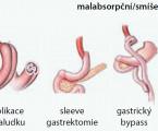 Pohled diabetologa na metabolickou chirurgii v léčbě diabetiků 2. typu