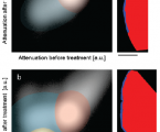Mineralization of Early Stage Carious Lesions <i>In Vitro</i>—A Quantitative Approach