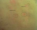 Alergie na titan prokázaná epikutánními testy