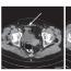 Zánětlivý pseudotumor močového měchýře jako projev aktivity