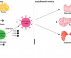 Monogenic form of autoimmune diabetes as a part of dysregulation of immune system