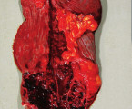 Non-traumatická arteriovenózna malformácia  sleziny sfatálnym krvácaním