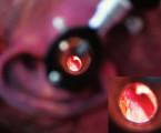 Význam otoskopie vsoudnělékařské  diagnostice: prospektivní studie