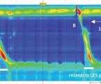 Význam regulácie tranzientných relaxácií dolného pažerákového zvierača v patogenéze pažerákovej refluxovej choroby