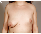 Correction of congenital breast and chest wall malformations by lipomodelling technique