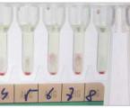 Daratumumab – naděje pro myelomové pacienty, výzva pro klinické laboratoře