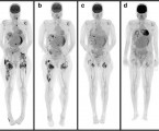 Sudden onset of parathyroid hormone-independent severe hypercalcemia from reversal of tumoral calcinosis in a dialysis patient