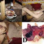 Letální případy krvácení do horní části gastrointestinálního traktu