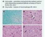 Progresívna multifokálna leukoencefalopatia spojená s rituximabom