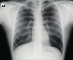 Kritická obstrukce dýchacích cest způsobená masou v mediastinu během celkové anestezie řešená pomocí ECMO a tracheobronchiálního stentu