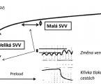 Predikce odpovědi na podání tekutiny – tekutinová reaktivita