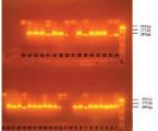 Orálne nosičstvo <i>Staphylococcus aureus</i> u stomatologických pacientov vzávislosti od podmienok vústnej dutine <br>(Pôvodná práca – retrospektívna štúdia)