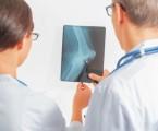 Efekt intenzivní hypolipidemické terapie na riziko kardiovaskulárních příhod u pacientů se zánětlivým onemocněním kloubů