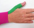 Využití kineziotapu při zatížení palce ruky fyzioterapeutů