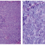 Lymph node metastasis of Merkel cell carcinoma without known cutaneous primary - case report