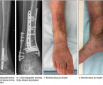 Combination of Masquelet's technique with transfer of free fasciocutaneous flap in the treatment of complex septic tibial pseudoarthrosis: preliminary results, overview of literature