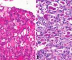 Sekreční karcinom slinných žláz