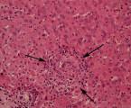 Granulomatózní hepatitida jako vzácná terapeutická komplikace