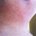 Monoklonální imunoglobulin a kožní nemoci ze skupiny mucinóz – scleredema adultorum Buschke a scleromyxedema: popis 4 případů a přehled léčebných možností