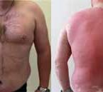 Metabolický syndróm a kardiometabolické komorbidity psoriázy