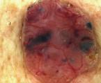 Dermatoskopie nepigmentovaných kožních nádorů. Kožní karcinomy a aktinické keratózy
