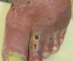 Léčba nehojících se ran ugeriatrických pacientů