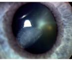 Oční komplikace upacientů srevmatoidní artritidou