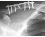 MID-SHAFT CLAVICLE FRACTURES IN ADULTS – ANALYSIS OF FAILURES AFTER PLATING