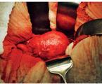 Pacient saneuryzmatem břišní aorty – diagnostika, sledování a péče vambulanci praktického lékaře