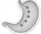Nové směřováníchirurgické léčby obezity a některých metabolických onemocnění