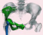 Primární maligní nádory kostí u dětí − možnosti záchovné chirurgie s využitím aloštěpů