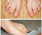 Od naražení palce nohy kdiagnostice cystické fibrózy