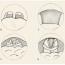Spánková endoskopie – cílená endoskopická diagnostika u
